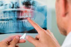 Diagnóstico por imagen-Dentista y odontólogo