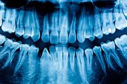Radiografía dental-Dentista y odontólogo