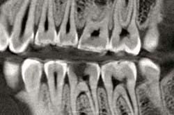 Radiografía-Dentista y odontólogo