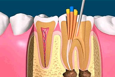 tratamiento-de-endodoncia-Aluche-Carabanchel-Madrid-Arpeldental